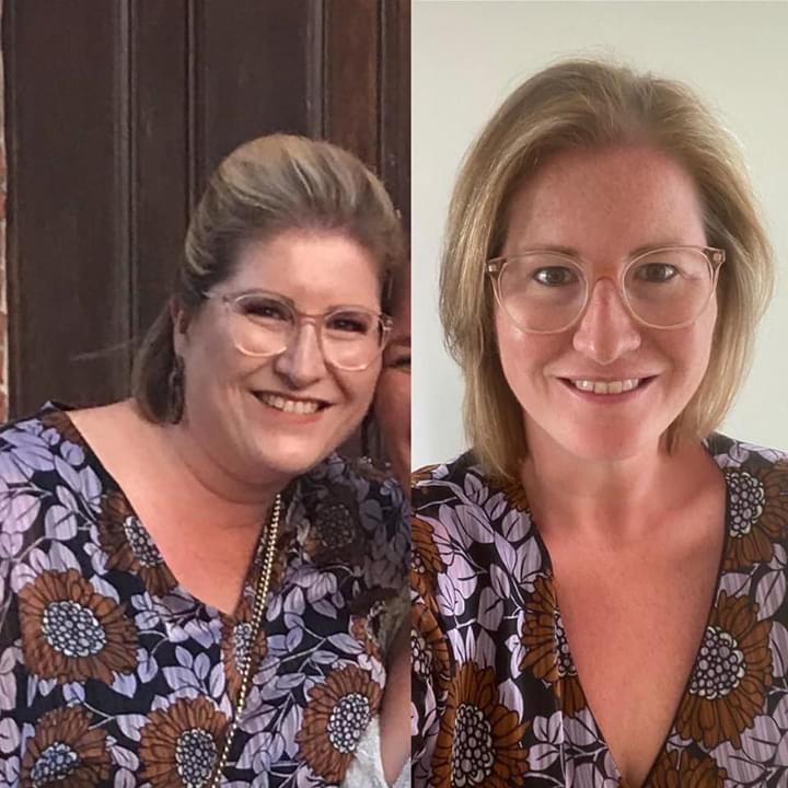 Voor en na maagband hypnose Oostende
